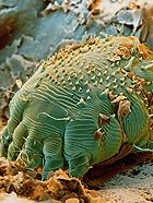 人体十大寄生虫的真面目