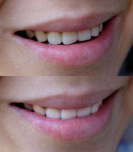 【倾城时光】亮白牙齿,我选欧乐B专业洁齿护龈洗牙双管牙膏