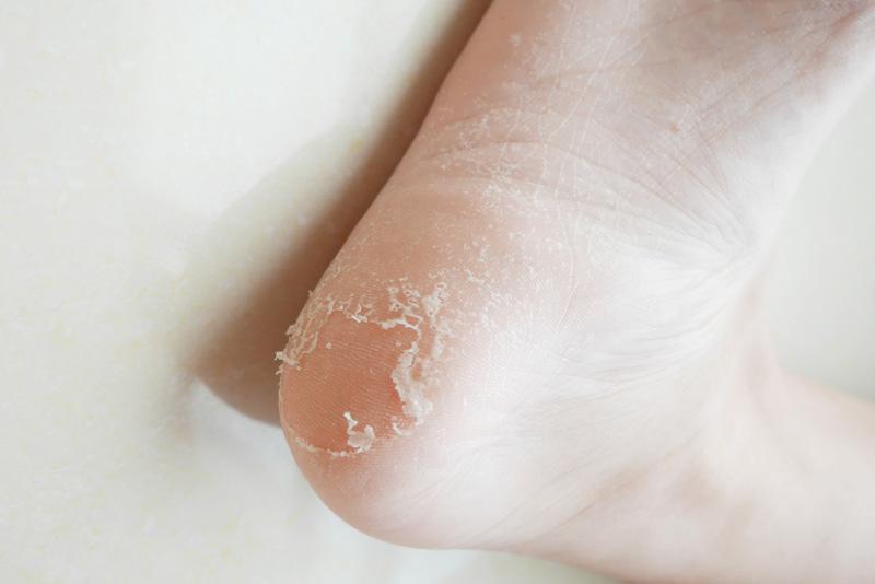 Miimeow 足膜--足部的美颜神器
