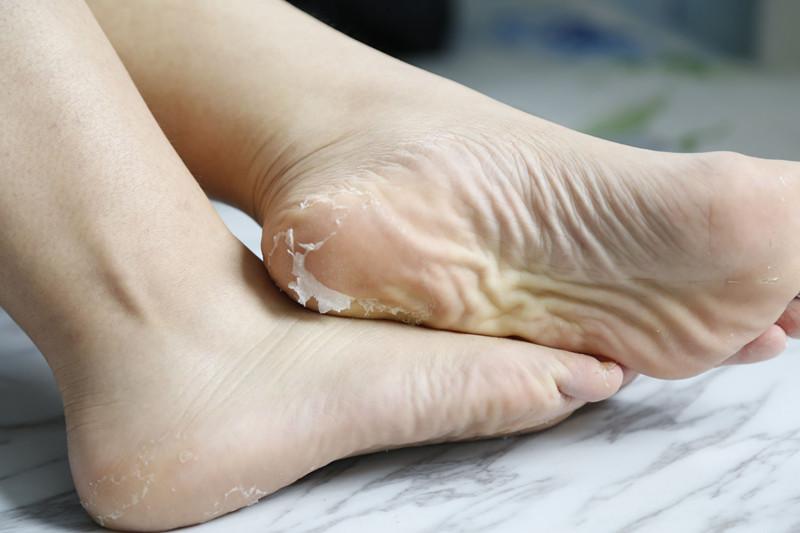 【vicky】Miimeow 足膜-足部的美颜神器