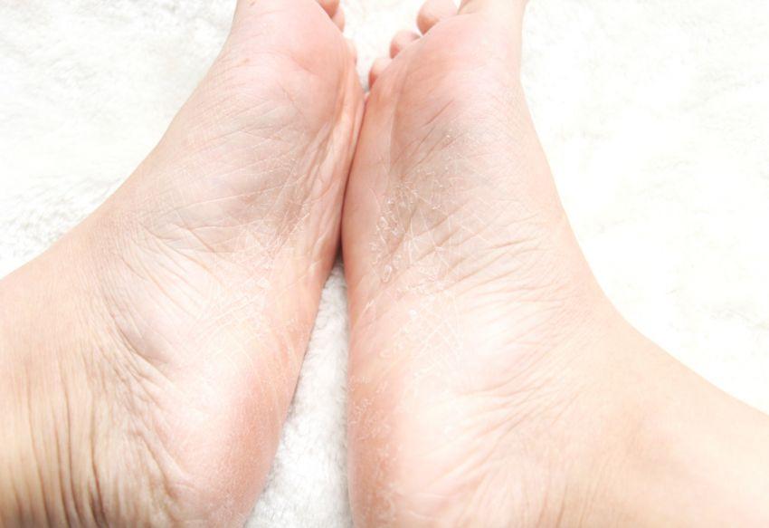 夏天脚丫也要嫩嫩哒  日本Miimeow保湿水嫩去角质护理足膜